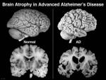 Efectos cerebrais do Alzheimer